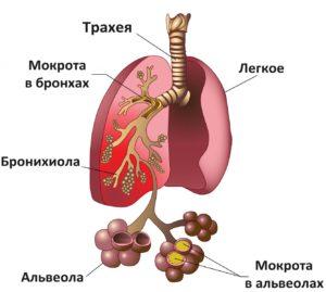 Причины нозокомиальной пневмонии