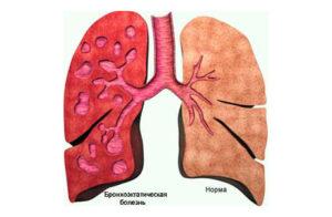 бронхоэктатическая болезнь легких