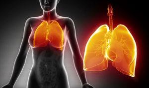 гипостатической пневмонии