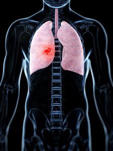лечение интерстициальной пневмонии