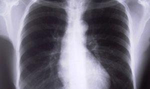 лечение закрытого туберкулеза