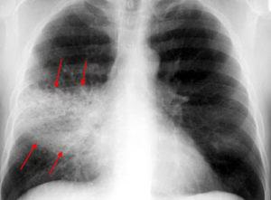 полисегментарная пневмония