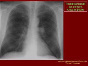 Лечение на рак на плеврита