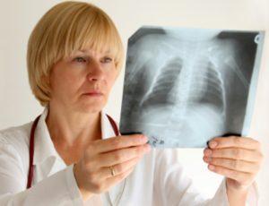 скрытая пневмония