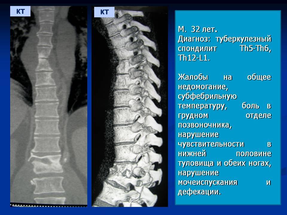 Лечение туберкулезного спондилита поясничного отдела позвоночника