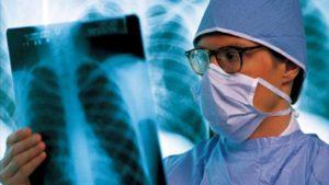 туберкулез на ранних стадиях