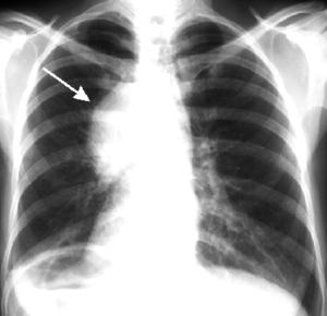симптомы при раке легких