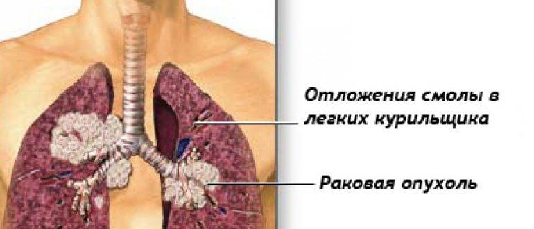 Рак легких: первые симптомы, признаки, лечение у женщин и мужчин.