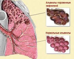 лечение буллезной эмфиземы легких