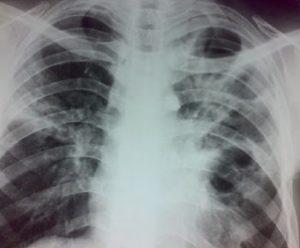 лечение фиброзно-кавернозного туберкулеза легких