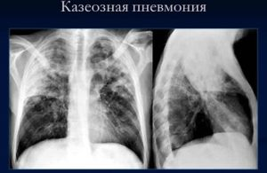 лечение казеозной пневмонии