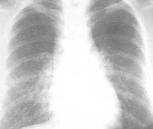 линейный фиброз легких