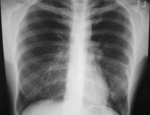 лечение микоплазменной пневмонии