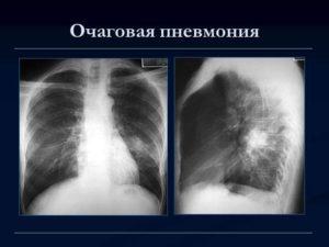 лечение нижнедолевой левосторонней пневмонии