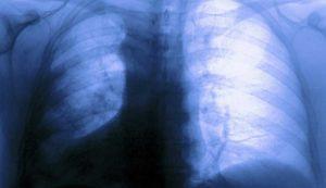 лечение осумкованного плеврита