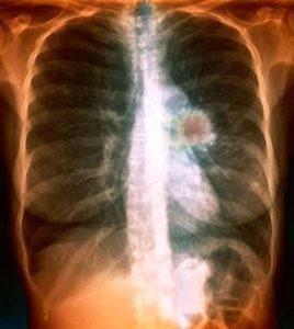 лечение периферического рака легкого