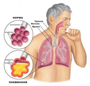 лечение респираторного хламидиоза