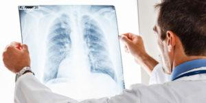 инкубационный период при туберкулезе