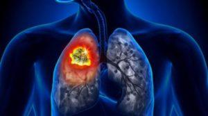 пациенты с раком легких