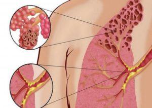 Симптомы и лечение попкорновой болезни легких